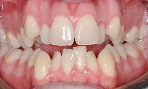 Làm thế nào để có hàm răng ĐỀU & ĐẸP tự nhiên không tốn tiền? 1