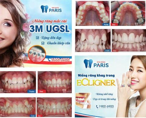 Làm thế nào để có hàm răng ĐỀU & ĐẸP tự nhiên không tốn tiền? 3