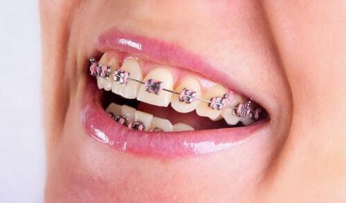 Các loại niềng răng mắc cài: Ưu - nhược điểm & tư vấn lựa chọn 2