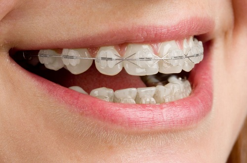 Các loại niềng răng mắc cài: Ưu - nhược điểm & tư vấn lựa chọn 4