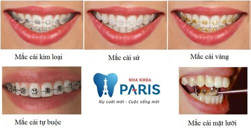 Các loại niềng răng mắc cài: Ưu - nhược điểm & tư vấn lựa chọn 6