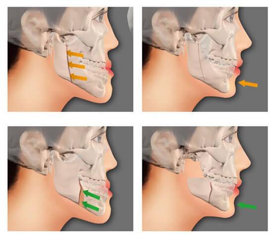 Cắt xương hàm chữa hô thẩm mỹ AN TOÀN - HIỆU QUẢ nhanh nhất 3