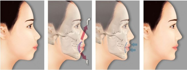 Cắt xương hàm chữa hô thẩm mỹ AN TOÀN - HIỆU QUẢ nhanh nhất 2
