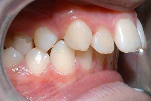 Bị vẩu hàm trên và phương pháp chữa trị Đúng đắn - Hiệu quả nhất 1