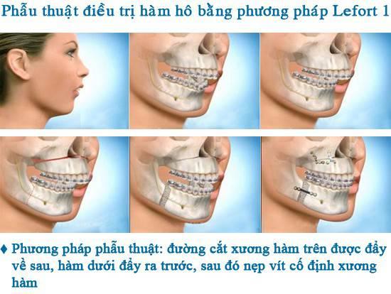 Bị vẩu hàm trên và phương pháp chữa trị Đúng đắn - Hiệu quả nhất 3