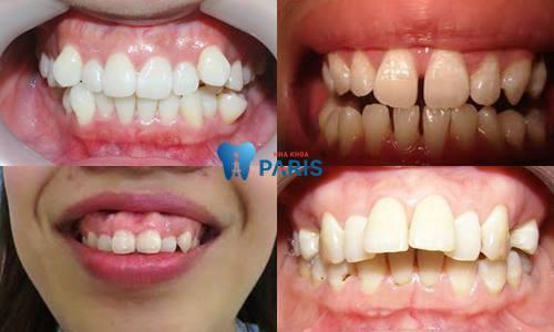 Công nghệ niềng răng 3D speed giải pháp chỉnh nha toàn diện 2018 2