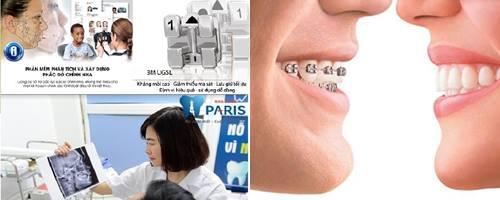Công nghệ niềng răng 3D speed giải pháp chỉnh nha toàn diện 2018 3