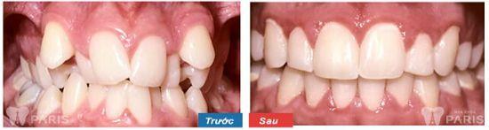 Công nghệ niềng răng 3D speed giải pháp chỉnh nha toàn diện 2018 4