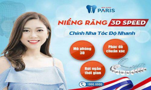 Công nghệ niềng răng 3D speed giải pháp chỉnh nha toàn diện 2018 1