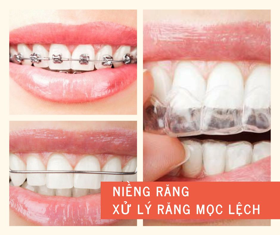 """Chi tiết 3 cách xử lý răng mọc lệch giúp răng """"ĐỀU ĐẶN VĨNH VIỄN"""" 1"""