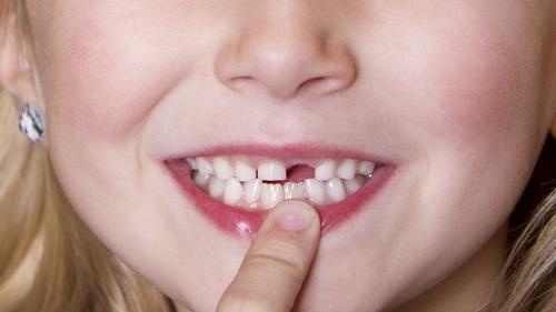 Dấu hiệu răng mọc lệch ở trẻ em & cách điều trị Đơn Giản Hiệu Quả 2