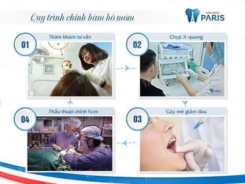 Phẫu thuật hàm móm BSSO An Toàn cho hàm răng ĐẸP chỉ sau 2h 5