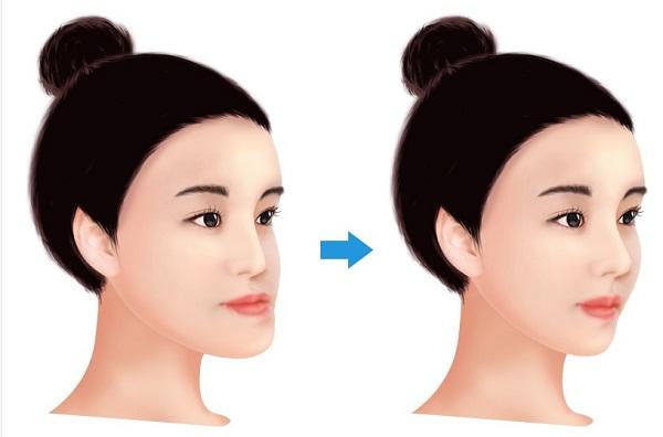 Phẫu thuật hàm móm BSSO An Toàn cho hàm răng ĐẸP chỉ sau 2h 3