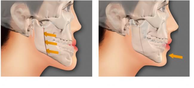 Phẫu thuật hàm móm BSSO An Toàn cho hàm răng ĐẸP chỉ sau 2h 4