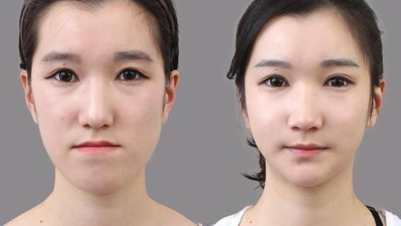Phẫu thuật hàm móm BSSO An Toàn cho hàm răng ĐẸP chỉ sau 2h 8