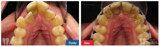Tại sao phải nhổ răng khi niềng răng? - BS chỉnh nha tư vấn 3