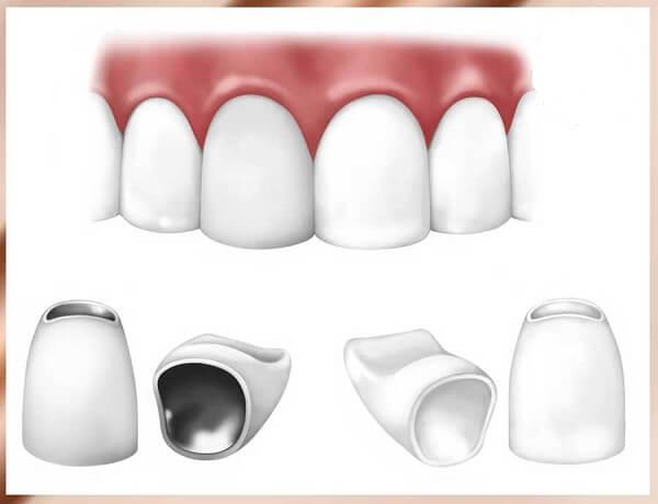 Nguyên nhân răng vẩu - căn cứ điều trị triệt để và tiết kiệm hô vẩu 2