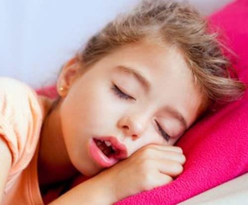 Nguyên nhân răng vẩu - căn cứ điều trị triệt để và tiết kiệm hô vẩu 1