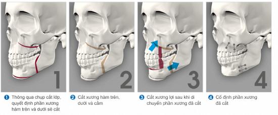Nguyên nhân răng vẩu - căn cứ điều trị triệt để và tiết kiệm hô vẩu 4
