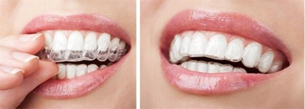 Niềng răng khi mang thai có nên thực hiện không? 3