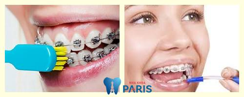 Những chú ý khi niềng răng để đạt hiệu quả tốt nhất mà ít ai biết 4
