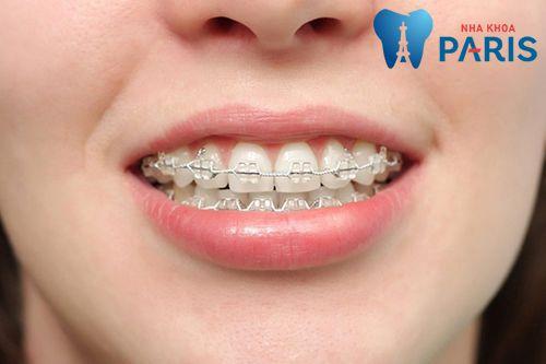 Niềng răng có hại cho sức khỏe không, ảnh hưởng gì không? 4