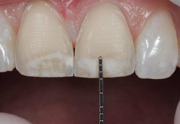 4 cách chữa răng hô vẩu áp dụng cho từng trường hợp cụ thể 1