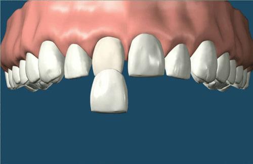 4 cách chữa răng hô vẩu áp dụng cho từng trường hợp cụ thể 2