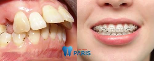 Nguyên nhân làm răng bị hô và cách khắc phục răng hô hiệu quả nhất 3