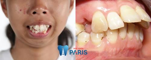 Nguyên nhân làm răng bị hô và cách khắc phục răng hô hiệu quả nhất 1