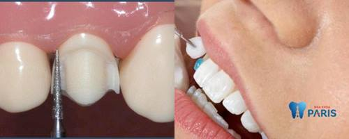 Nguyên nhân làm răng bị hô và cách khắc phục răng hô hiệu quả nhất 2
