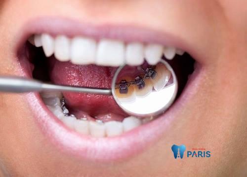 Phương pháp niềng răng mặt trong giá bao nhiêu? Bảng giá mới 2018 3