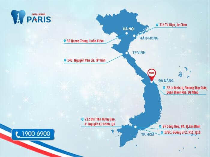 Niềng răng mắc cài ở Đà Nẵng nha khoa nào là địa chỉ uy tín? 3