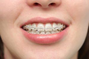 Bật Mí: Răng hơi hô thì cười như nào cho DUYÊN và ĐẸP nhất? 4