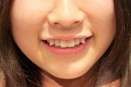 tại sao lại có răng khểnh