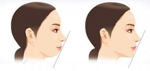 Top 4 cách làm răng bớt hô vẩu đơn giản hiệu quả nhanh nhất 1