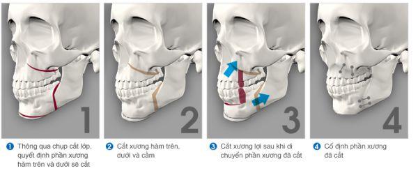 Top 4 cách làm răng bớt hô vẩu đơn giản hiệu quả nhanh nhất 3