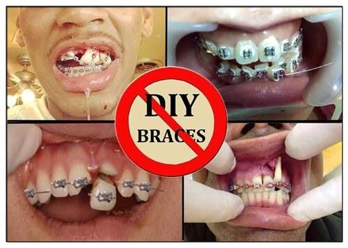 Cách niềng răng tại nhà có hiệu quả như lời đồn? 3
