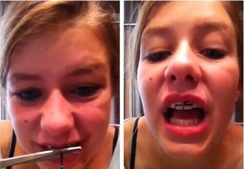 Có tồn tại dụng cụ niềng răng tại nhà không? Và hiệu quả ra sao? 2