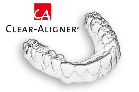 niềng răng clear aligner