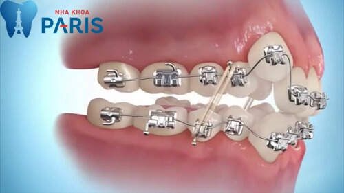 Tại sao lại có răng khểnh? Răng khểnh trong tướng số là tốt hay xấu? 5