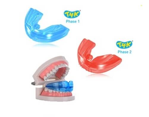 Làm sao để có răng khểnh mọc đẹp tự nhiên nhất? 2