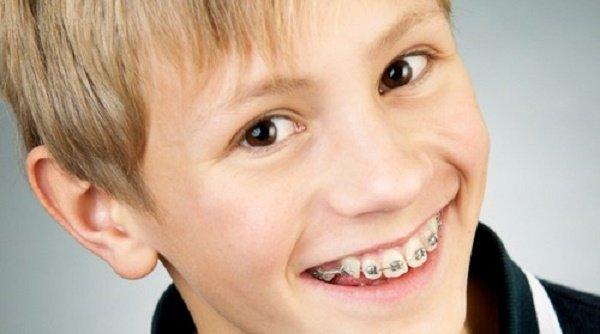 Làm sao để tháo niềng răng trước thời hạn được? 2