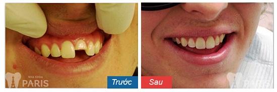 Niềng răng bị hỏng vì bệnh lý được không, cần lưu ý gì? 4