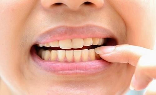 Niềng răng bị hỏng vì bệnh lý được không, cần lưu ý gì? 1