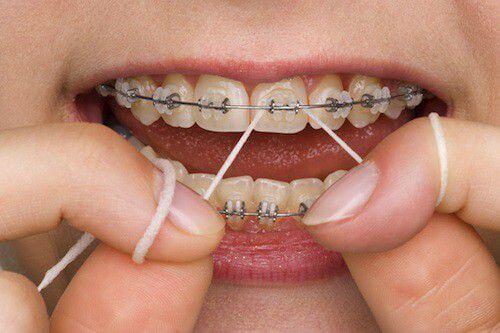 Niềng răng bị hỏng vì bệnh lý được không, cần lưu ý gì? 5