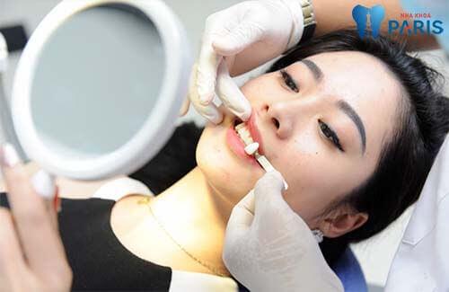 Làm sao để có răng khểnh? Có nên tạo răng khểnh hay không? 2