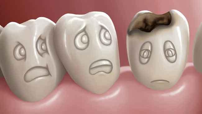 Làm sao để có răng khểnh? Có nên tạo răng khểnh hay không? 3