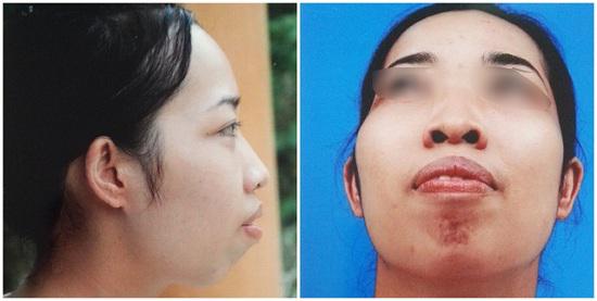 Chỉ phẫu thuật hàm hô không cần niềng răng thì có hiệu quả không? 2