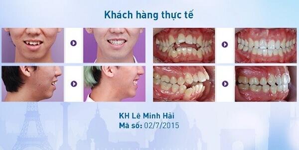 Niềng răng có tác dụng gì khác ngoài làm răng đều? 6
